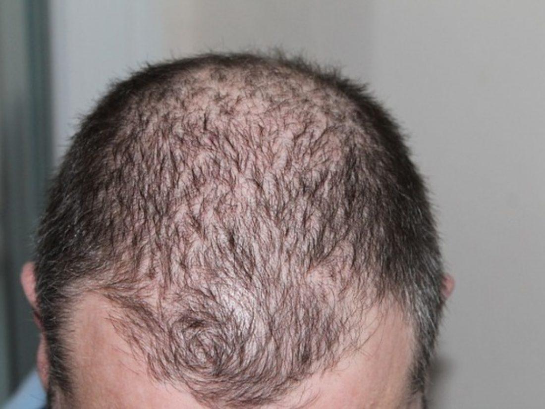 Mon mari perd ses cheveux!!