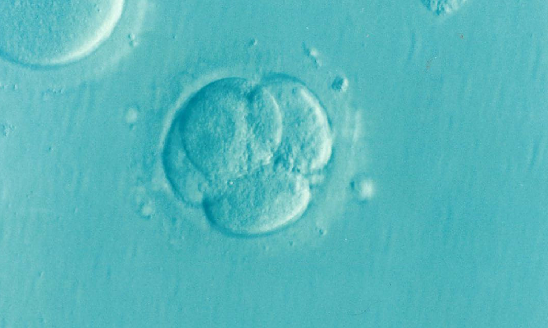 Pourquoi avoir recours à la fécondation in vitro en Espagne?